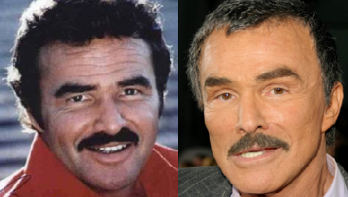 Burt-Reynolds-Before-And-After