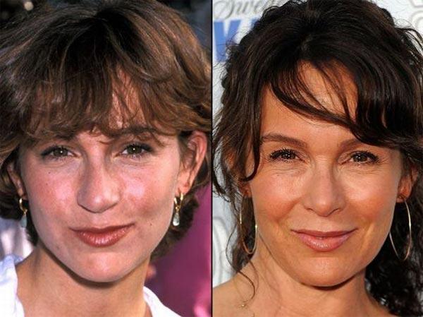 Jennifer-Grey-Plastic-Surgery-Before-After