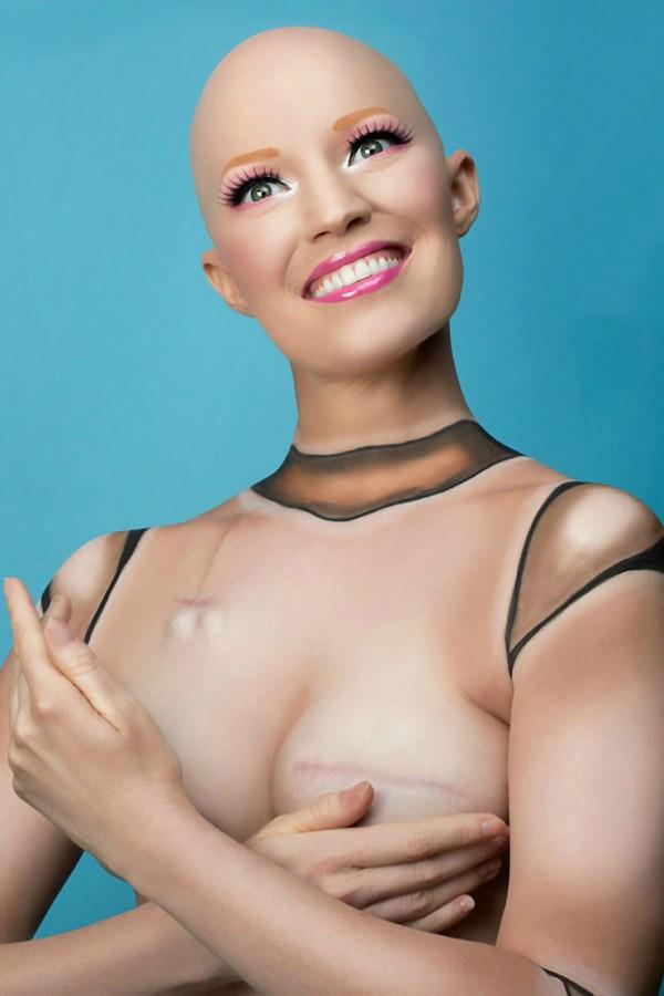 fotos-mastectomia-cancer-my-breast-choice-aniela-mcguinness-3