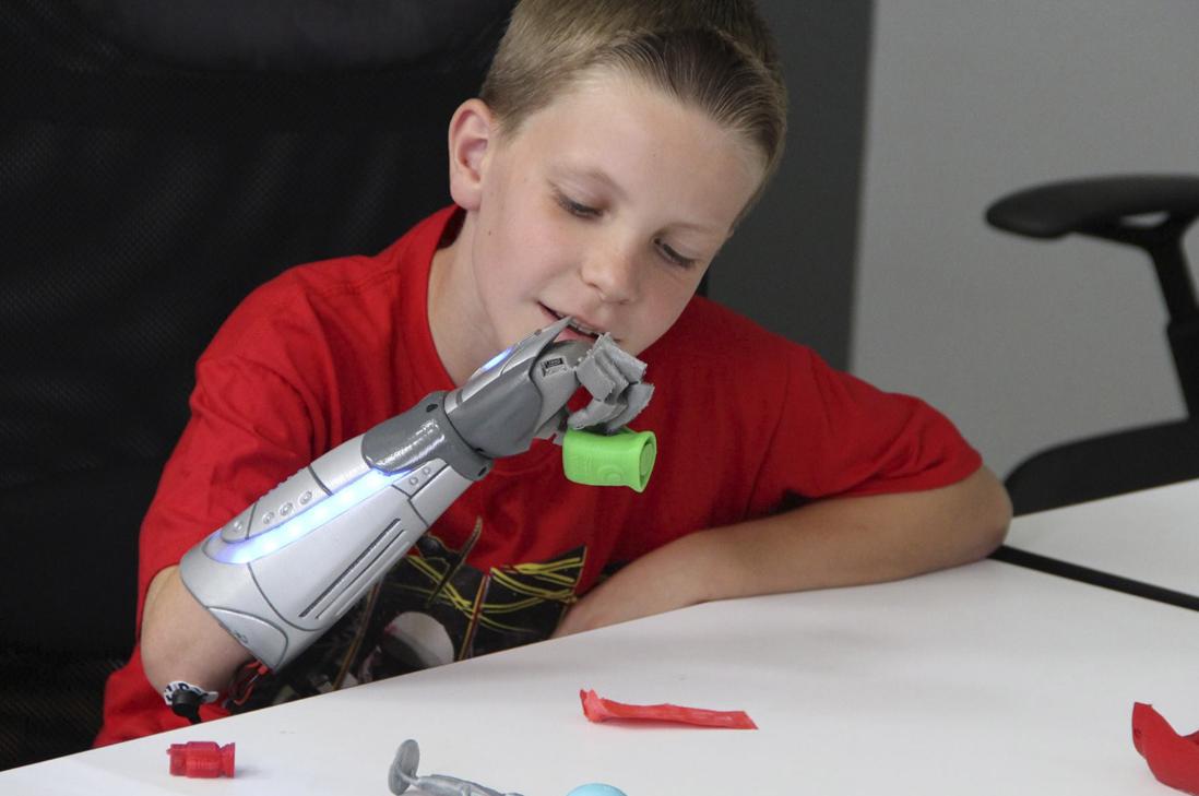 Nuevas prótesis biónicas para niños estarán inspiradas en superhéroes