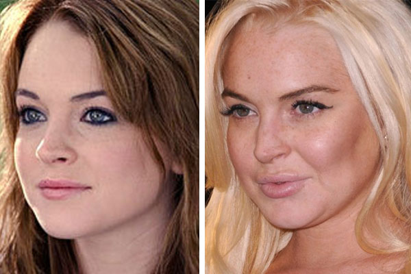 lindsay-lohan-plastic-surgery-before-and-after