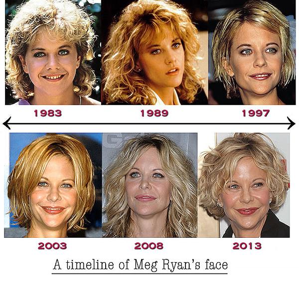 meg-ryan-plastic-surgery-through-the-years
