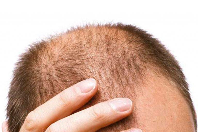 Dile adiós a la Alopecia en 10 segundos