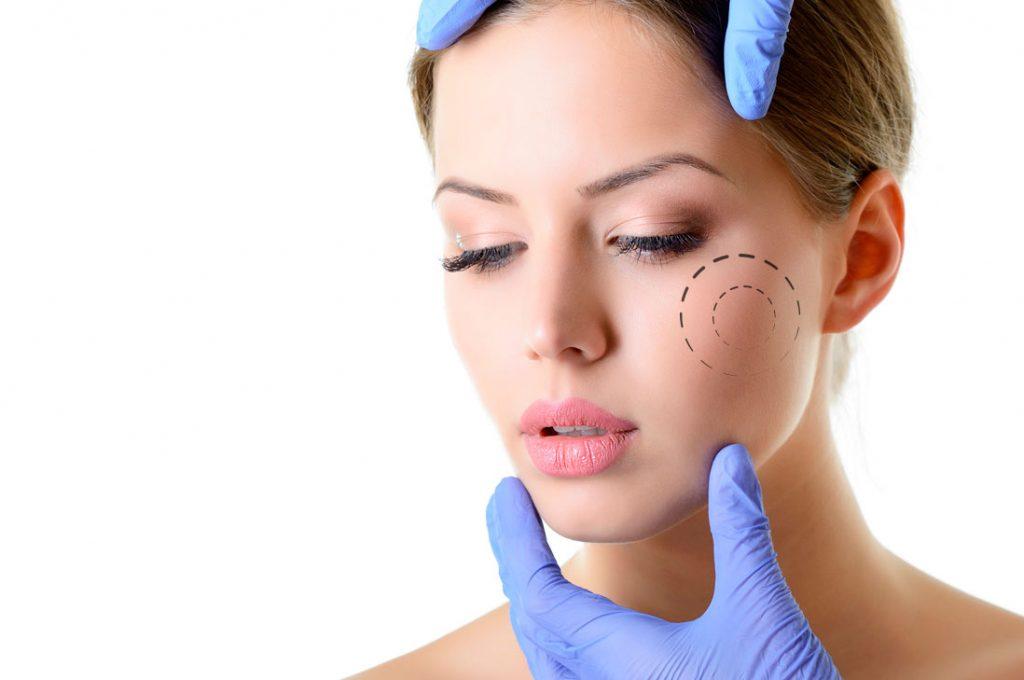 Bichectomía: El mejor regalo de Navidad que cambiará tu rostro en sólo una sesión