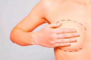 Implantes mamarios y deportes extremos