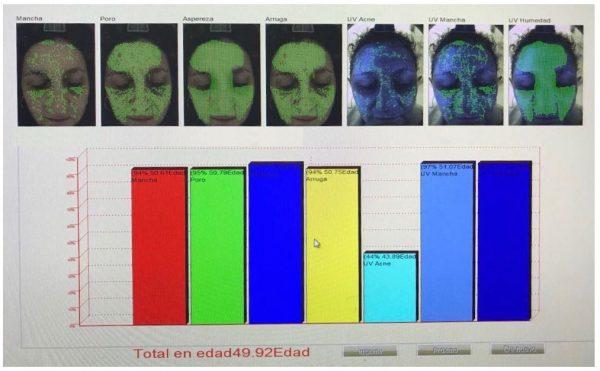 skin analyzer
