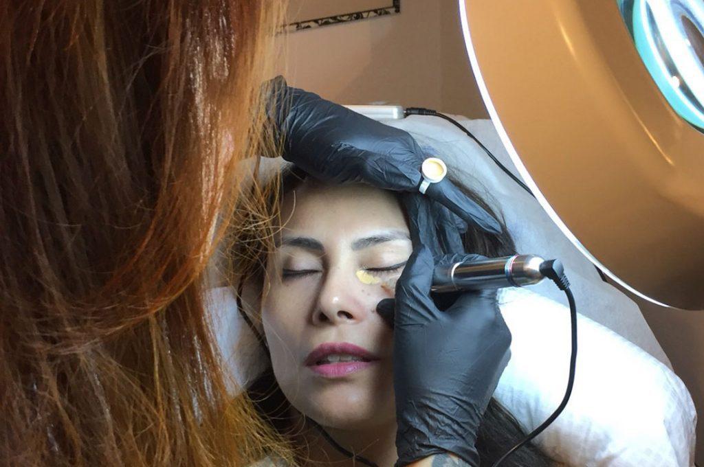Camuflaje de ojeras con Dermopigmentación