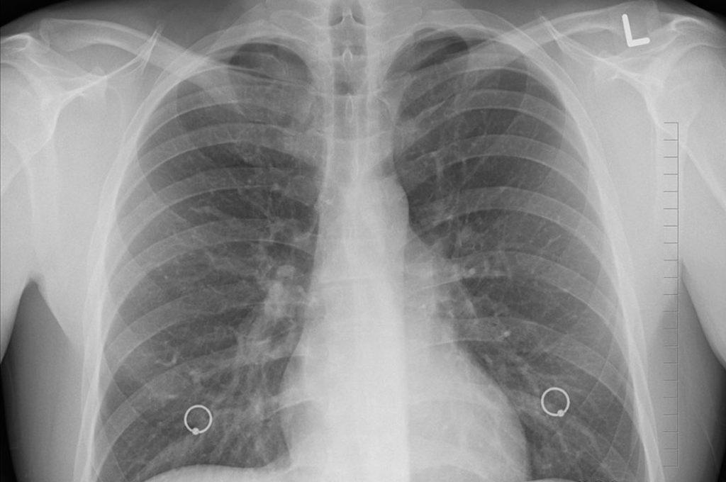 Se estima que el cáncer de pulmón sea el cuartoen incidencia en Chile
