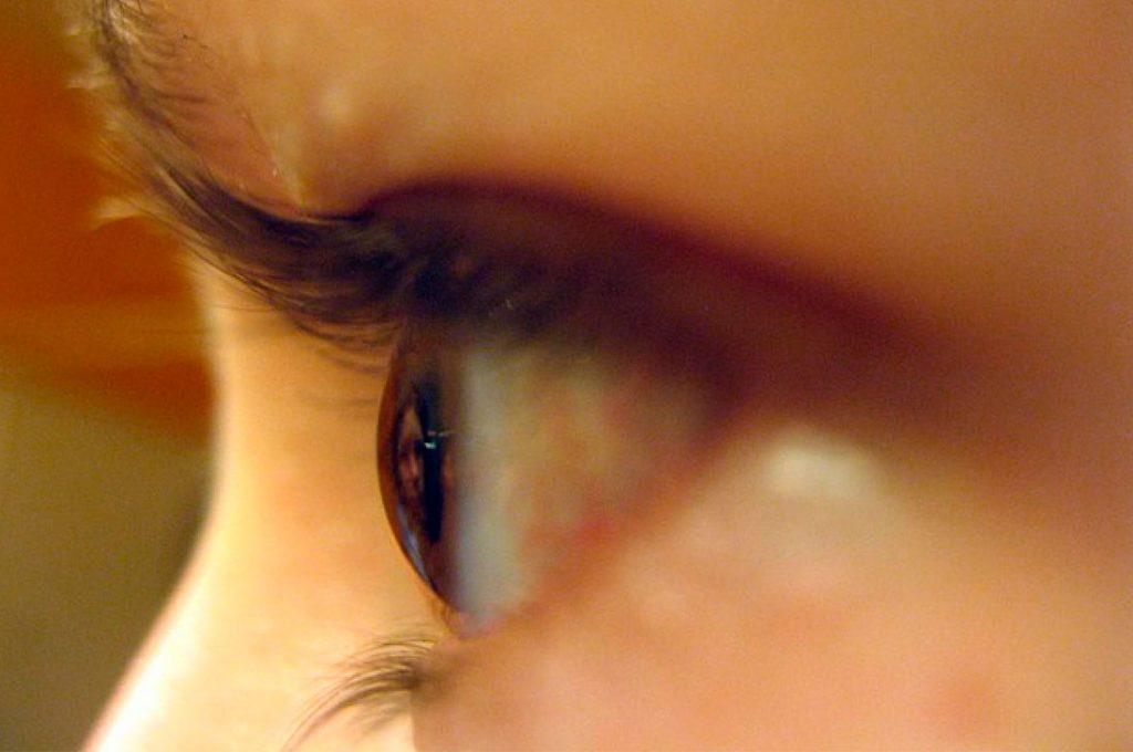Tecnología permite diagnosticar enfermedades oftalmológicas a distancia