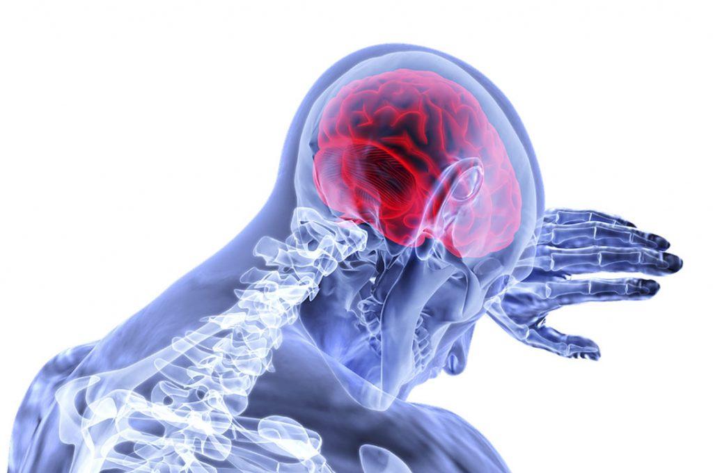 5 señales para reconocer un  accidente cerebrovascular