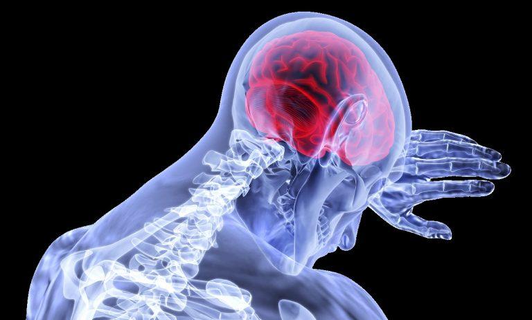 Tratamiento de tumores cerebrales con radiocirugía