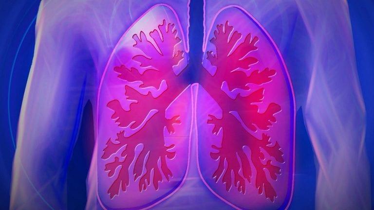 Neumonía por Covid-19 puede dejar importantes secuelas respiratorias en pacientes con Fibrosis pulmonar idiopática