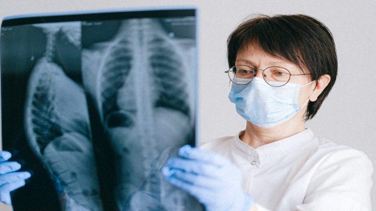 Fundación Aire buscará apoyo para pacientes con fibrosis pulmonar en Chile