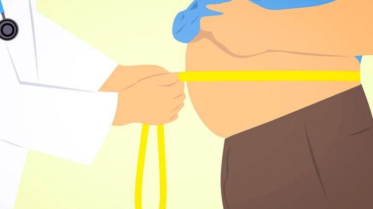 Pacientes con obesidad severa y mórbida esperan el cuarto retiro para poder pagar una cirugía bariátrica